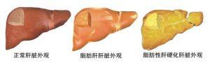 吉三代仿制药,让中国4000万丙肝患者重获信心