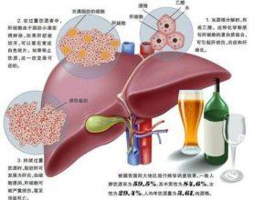 吉三代仿制药Sofosvel,降低丙肝患者医疗支出